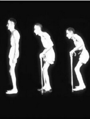 得了强直性脊柱炎好治吗