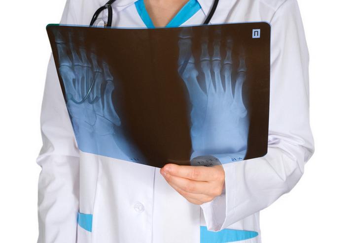 简述骨结核的病例解析