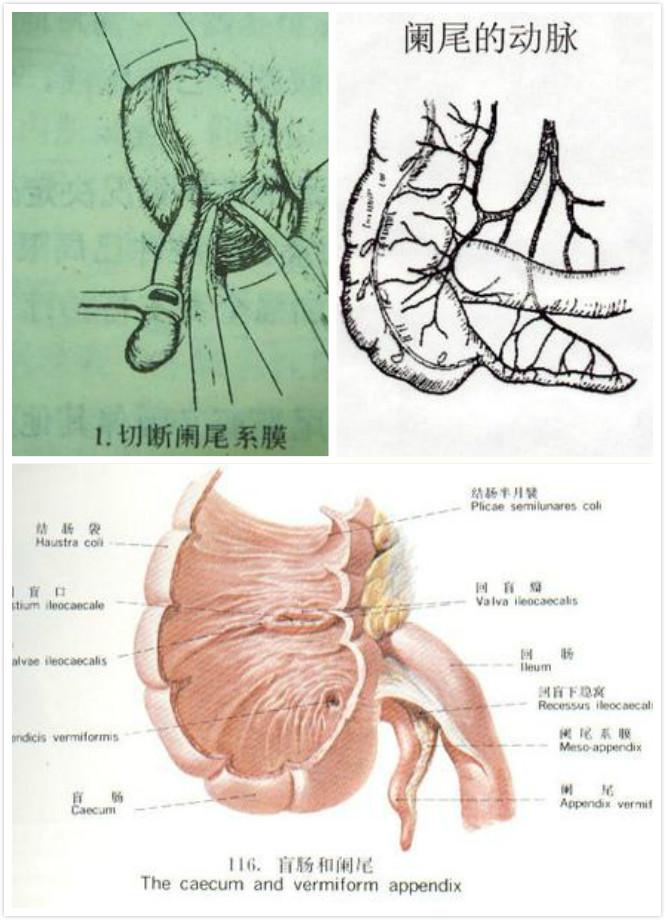慢性盲肠炎怎么办_慢性阑尾炎有哪些注意事项