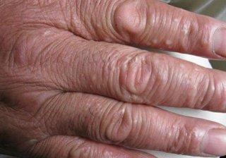 手部湿疹症状图片