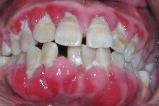 牙龈肿胀的饮食禁忌