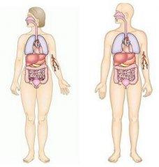 简单介绍什么是女性尿道癌