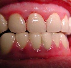 牙龈癌的早期症状图片有哪些