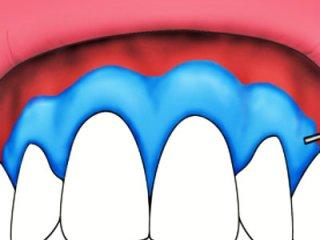 牙龈癌可以并发哪些疾病呢