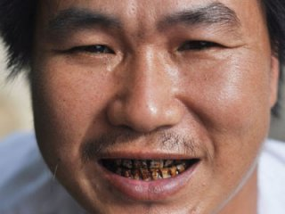 抽烟牙齿黄 13个小方法助你牙齿变白