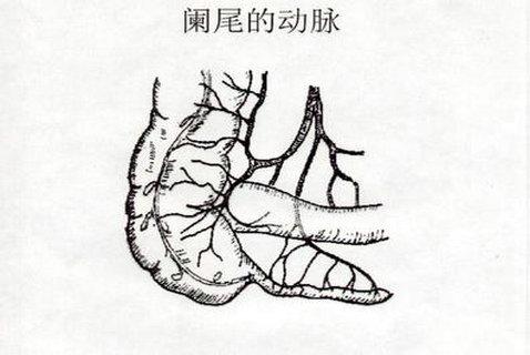 慢性盲肠炎怎么办_得了慢性阑尾炎怎么办
