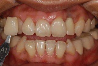 口腔牙龈肿胀的预防病例