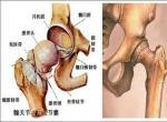 股骨头坏死患者应该如何锻炼呢