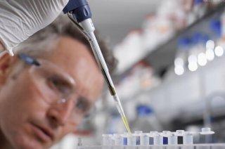 重型乙肝患者会出现什么症状呢