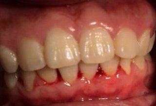 口腔疾病多种多样