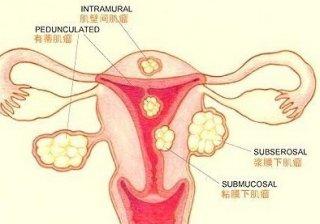 得了有子宫肌瘤能怀孕吗