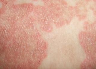 治疗湿疹的三种药物介绍