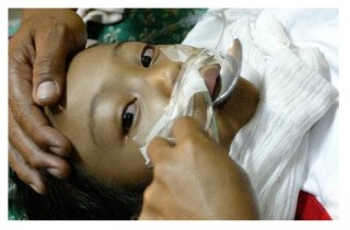 食品安全又发 菲律宾近两千人水果糖中毒
