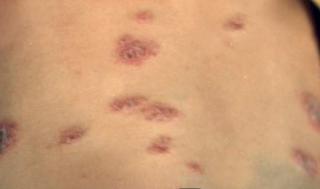怀孕初期怎样治疗湿疹啊