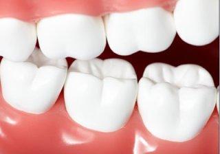 小心!牙齿松动可能是癌症在发威