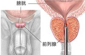 冬季高发前列腺炎 4招积极治疗