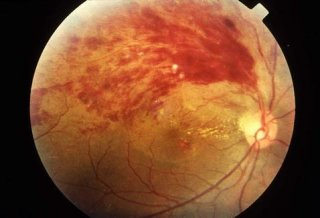 视网膜脱落的主要症状有哪些