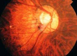 六大引起视网膜脱落原因介绍