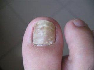 浅谈灰指甲的四大危害