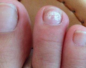 灰指甲日常应该如何治疗呢
