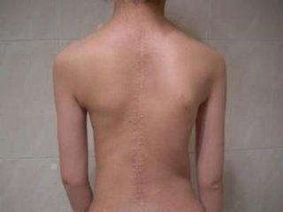 腰肌劳损的保健方法有哪些呢