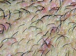 毛囊炎应如何预防呢