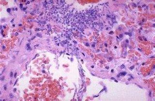 注意四大阴囊湿疹引起的并发症