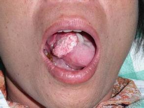 分子光谱新技术:口腔癌自动检测
