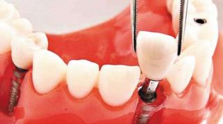 如何选准种牙的时机?最晚别超过半年