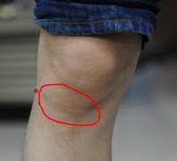 缓解老寒腿关节炎的偏方你了解吗