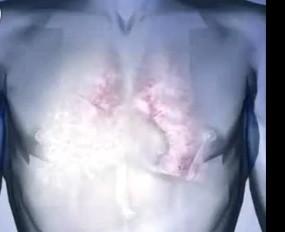 胸腔积液百科
