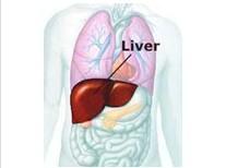 肝脏炎性假瘤