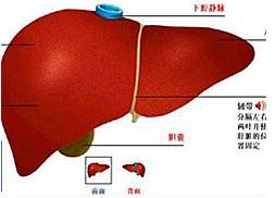 肝包虫囊肿百科