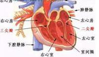 充血性心力衰竭百科