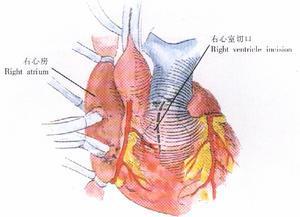肺动脉高压百科