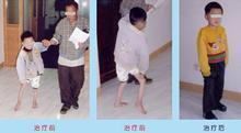 小儿麻痹症百科