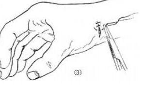 腱鞘囊肿百科