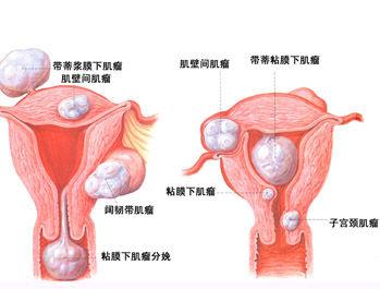 子宫肌瘤百科