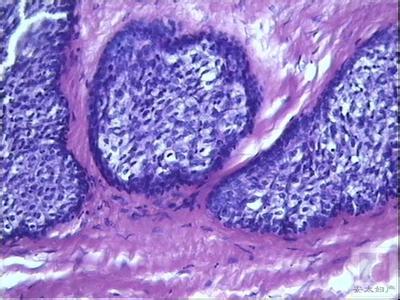畸胎瘤百科