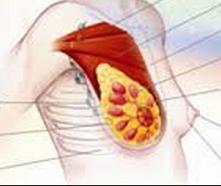 乳腺炎百科