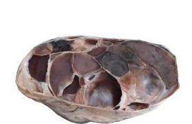 腹膜间皮瘤