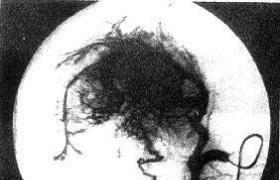 肝纤维板层癌