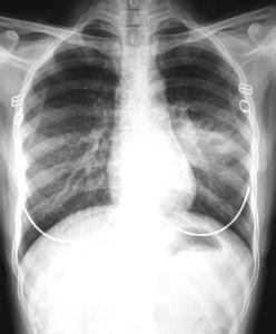 肺结核百科