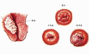 子宫癌百科