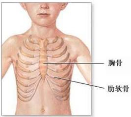 肋软骨炎百科