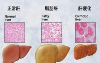 脂肪肝百科