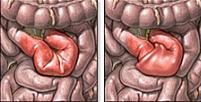 肠梗阻百科