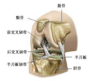 膝关节半月板损伤百科