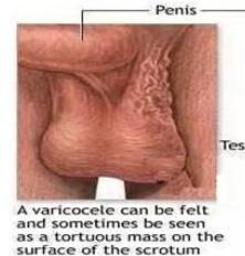 睾丸癌百科