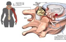 颈椎椎管狭窄